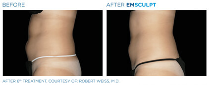 emsculpt before and after - image 002