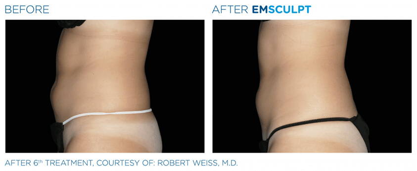 emsculpt before and after 02