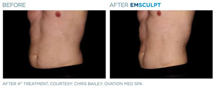 emsculpt before and after - image 004