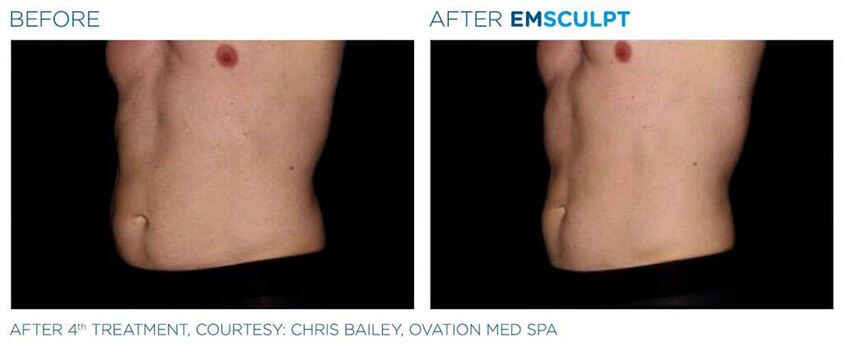 emsculpt before and after 04 - male model