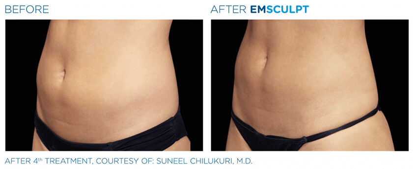 emsculpt before and after 05