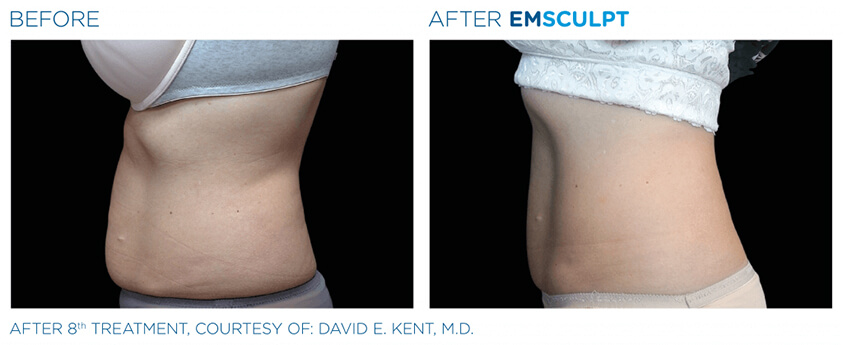 emsculpt before and after 06