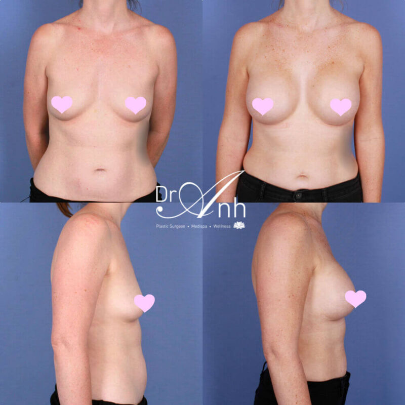Breast enlargement with implants, patient before & after, photo 14