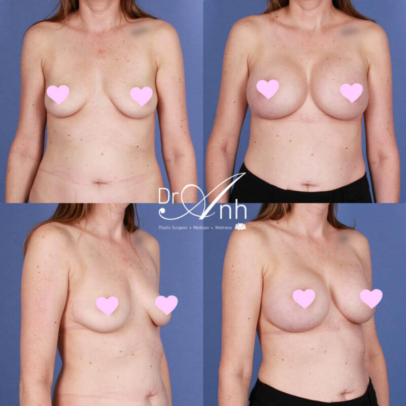 Breast augmentation results with Dr Anh, photo 15