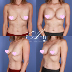 breast_augmentation_1_