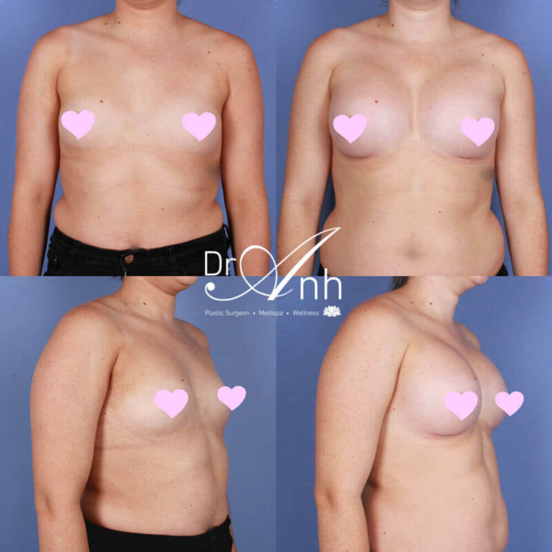 Breast augmentation, before & afters, photo 20
