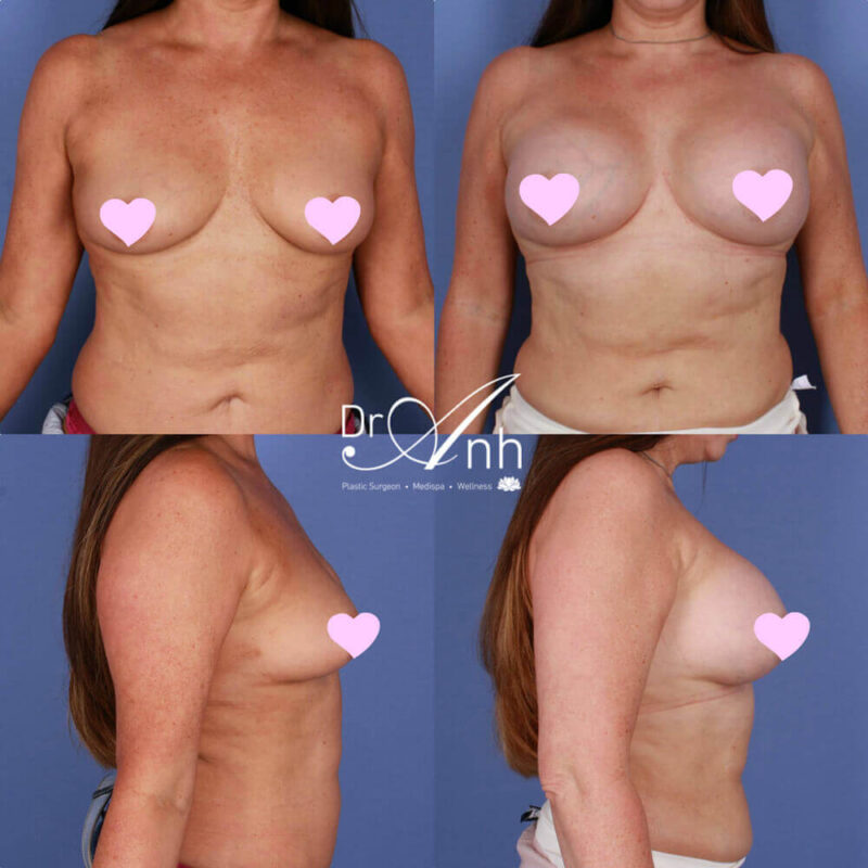 Breast enlargement with implants, photo 21