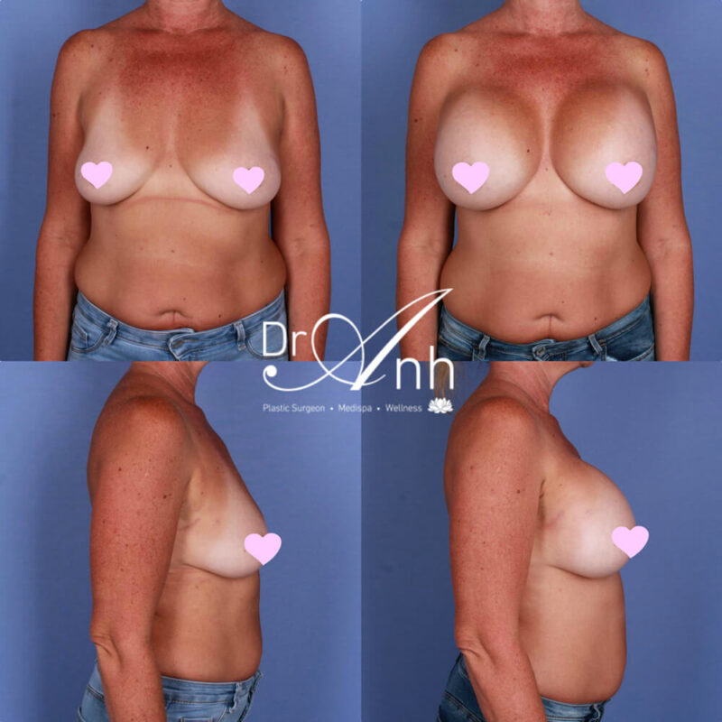 Breast augmentation, patient results, photo 22
