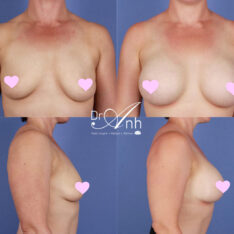 breast_augmentation_23_