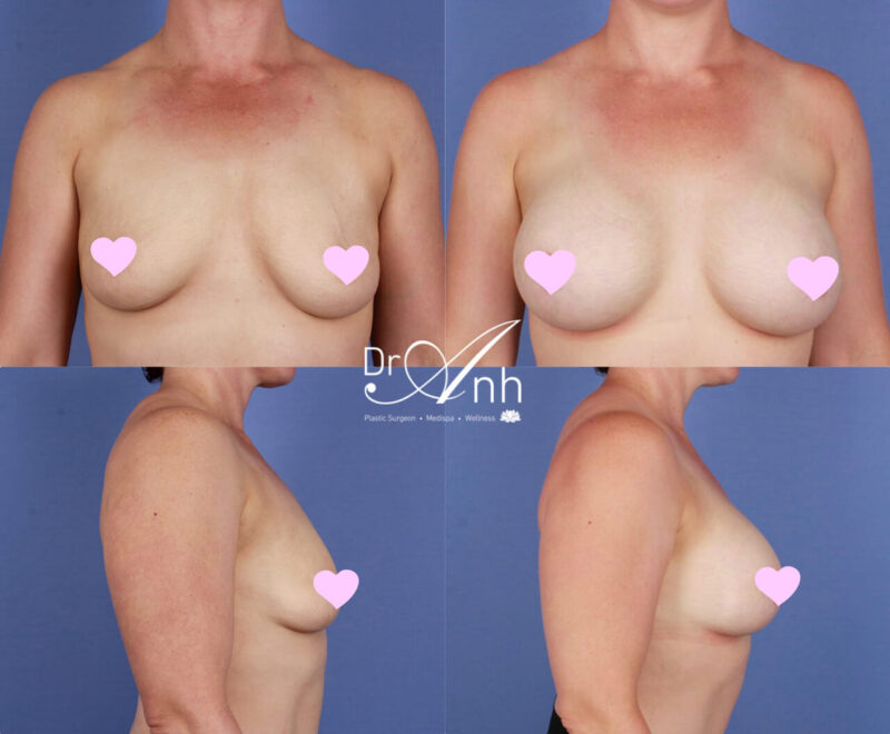 Breast augmentation, photo 23, Dr Anh