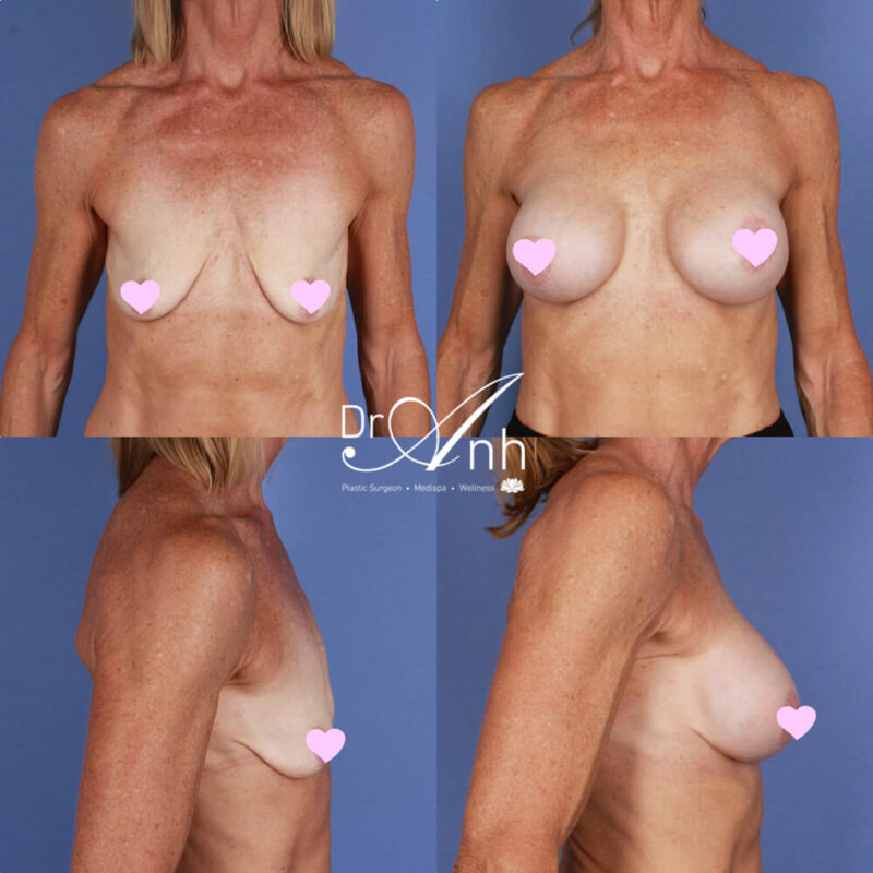 Breast augmentation with implants, photo 25