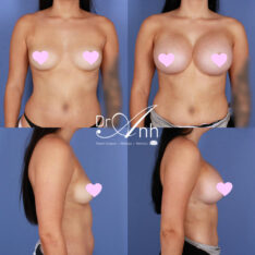 breast_augmentation_27_