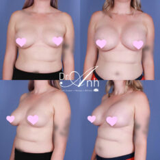 breast_augmentation_29_