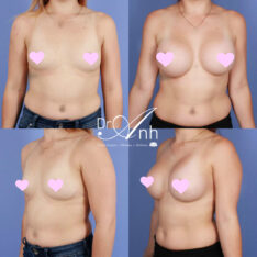 breast_augmentation_30_