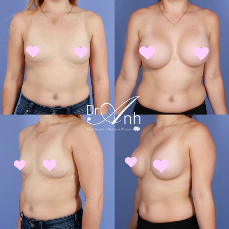 Breast augmentation with implants, patient before & after, photo 30