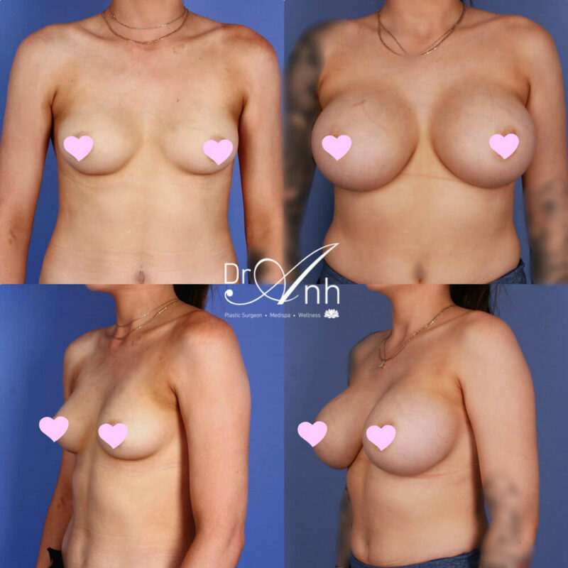 A breast augmentation patient, surgery results, photo 03