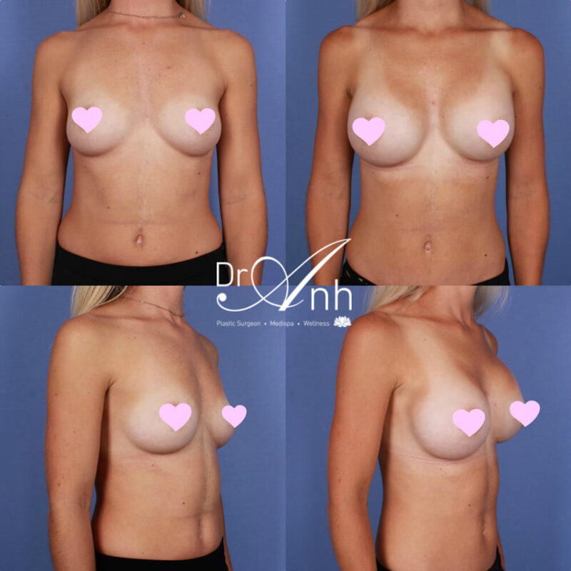 Breast augmentation with Dr Anh, photo 06