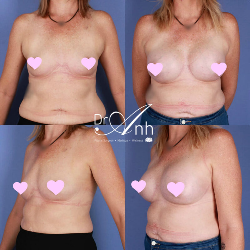 A patient before and after breast augmentation at Dr Anh Clinic, photo 08