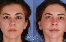 Facelift before and after, image 01, size 2x