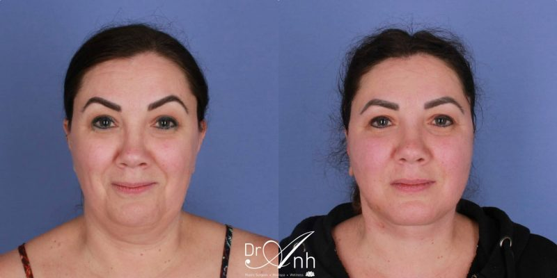 Patient before and after facelift, image 02, size 2x