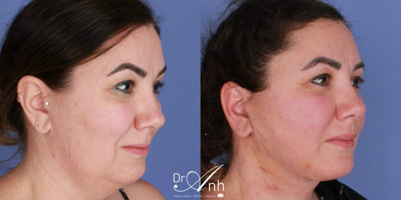 Face and neck lift surgery, before and after, image 03, size 2x