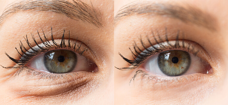eyelid surgery - blepharoplasty - eyes - closeup image