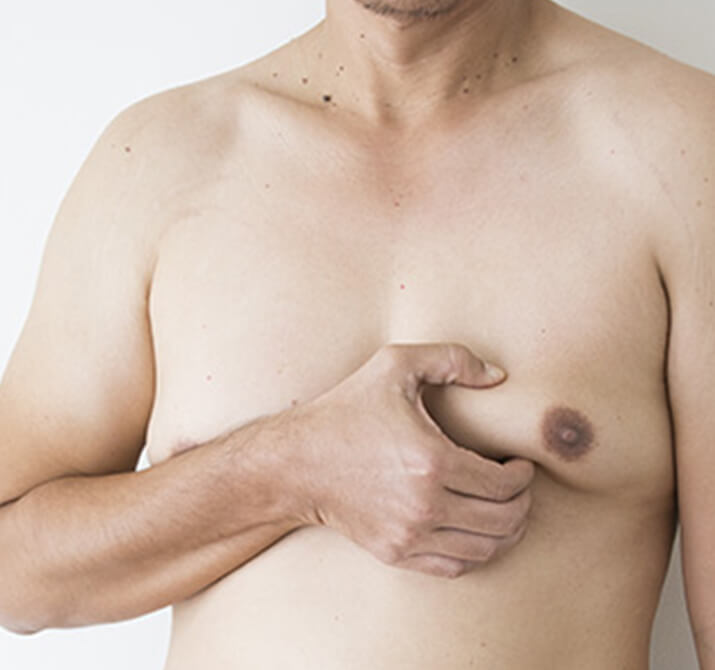 male breast reduction 02-1 - 2x size