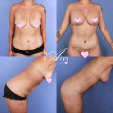 Mummy makeover before and after 11, body lift surgery patient