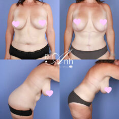 Mummy makeovers image 12, body lift surgery, before and after gallery