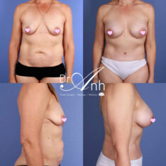 Mummy makeovers photo gallery, body contouring image 01