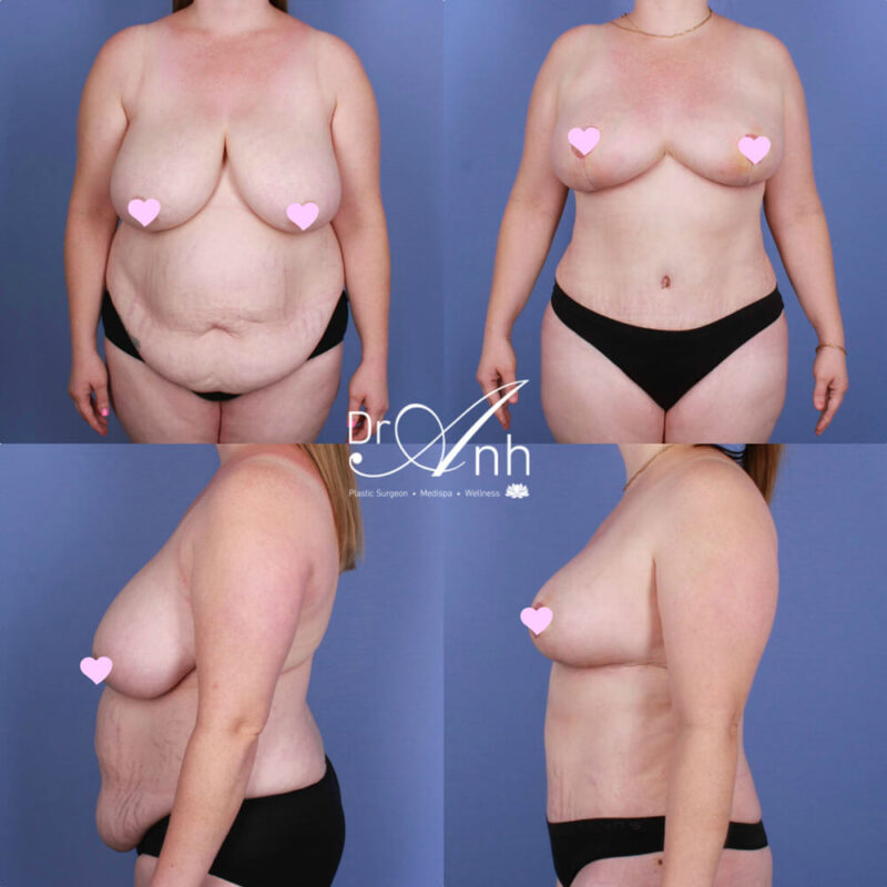 Mummy makeover before and after, body contouring image 02