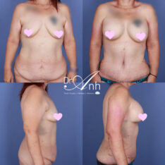Patient before and after mummy makeover with Dr Anh, image 03
