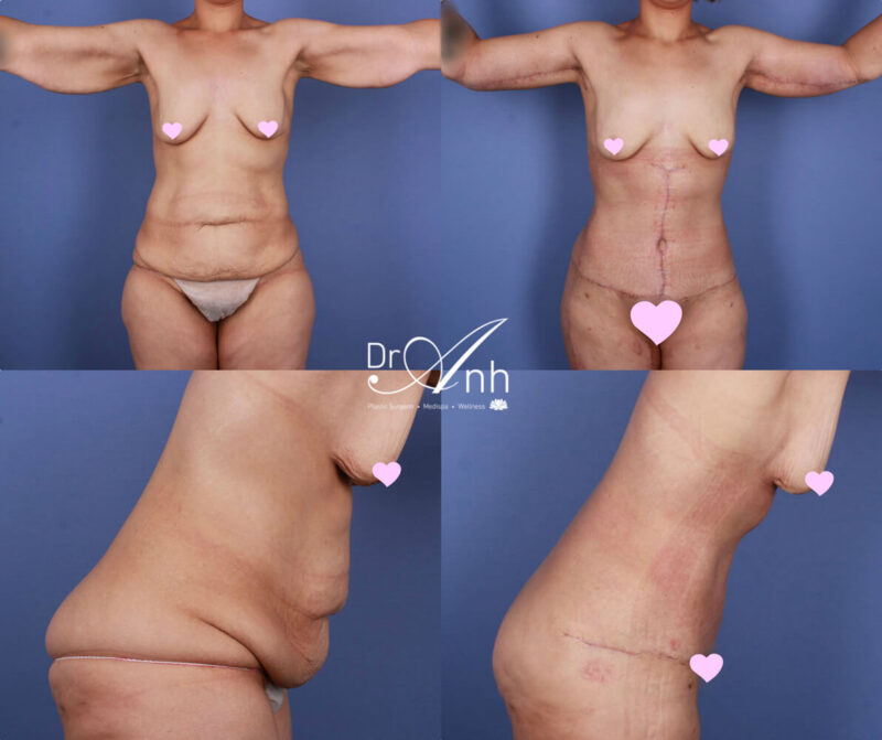 Mummy makeover gallery, before & after, body lift image 04