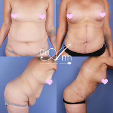 Mummy makeovers photo gallery, body contouring image 07