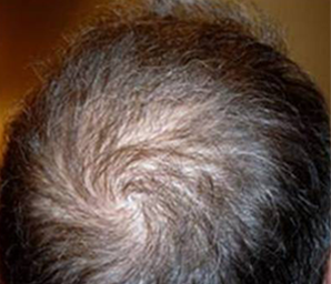 hair transplant before and after 2 - after