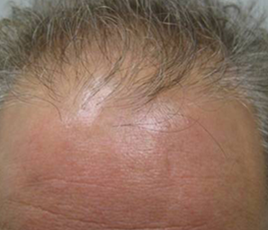 hair transplant before and after 3 - before