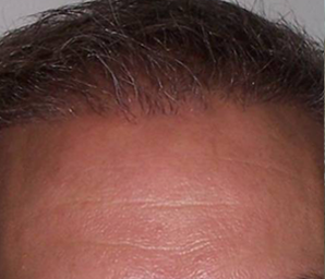 hair transplant before and after 4 - after