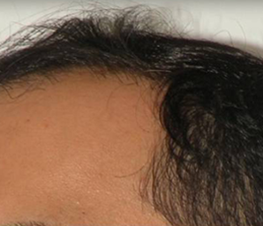 hair transplant before and after 5 - before