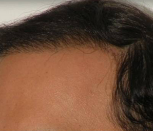 hair transplant before and after 6 - after