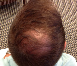 hair transplant before and after 7 - before