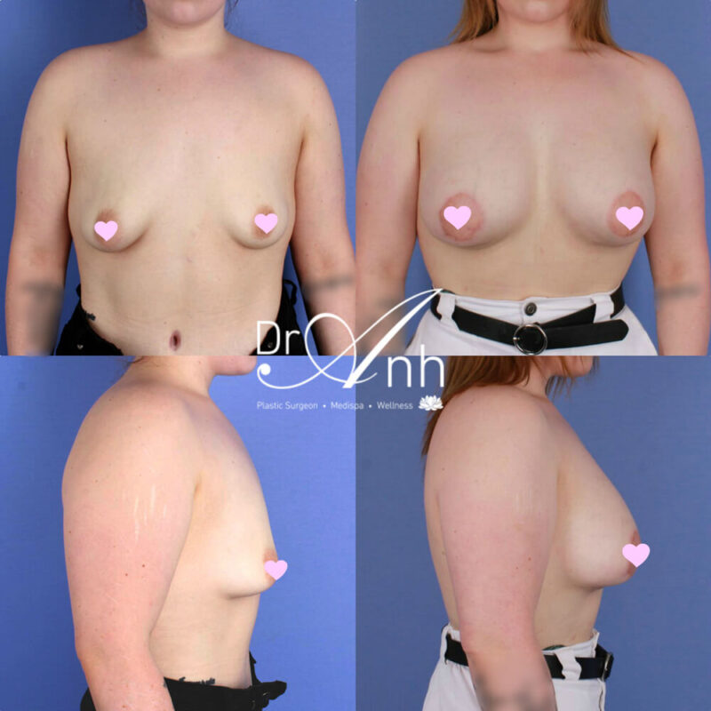 Tuberous breast reconstruction gallery, photo 02