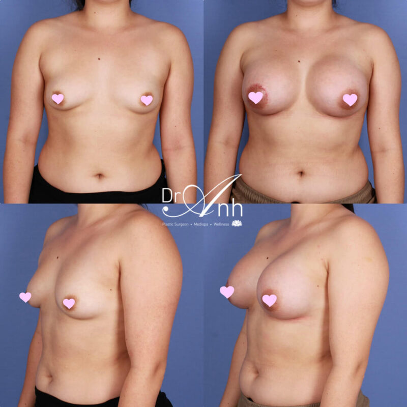 Tuberous breast reconstruction, before and after photo 03