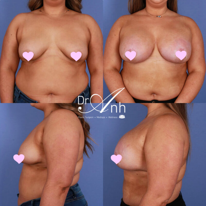Patient before and after tuberous breasts reconstruction, image 04
