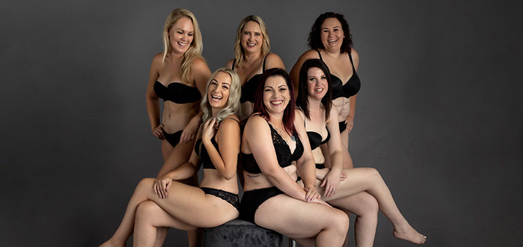 Dr Anh's tummy tuck models - real patients - group image