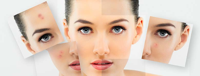 acne treatment dr anh clinic perth