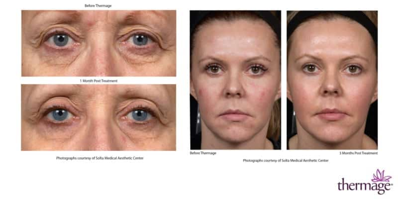 Thermage before and after, 2 images, area around eyes (closeup) and complete face