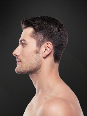 rhinoplasty model image 01 - nose job surgery featured image