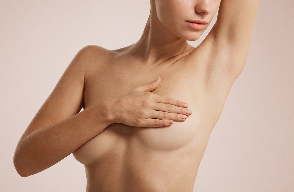 Breast implant replacement, model image 02